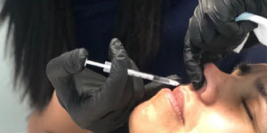 Woman receiving a lip injection at Beverly Hills Rejuvenation Center