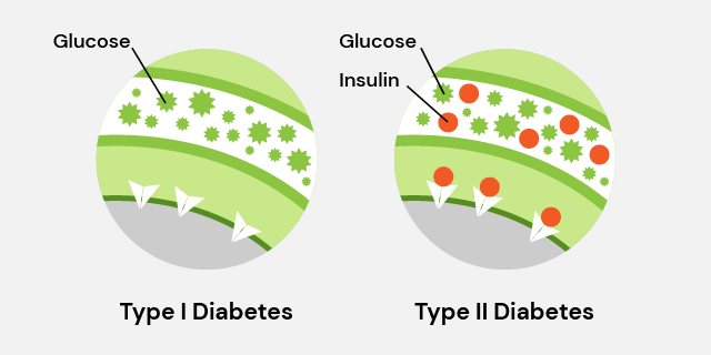 type I vs type II diabetes