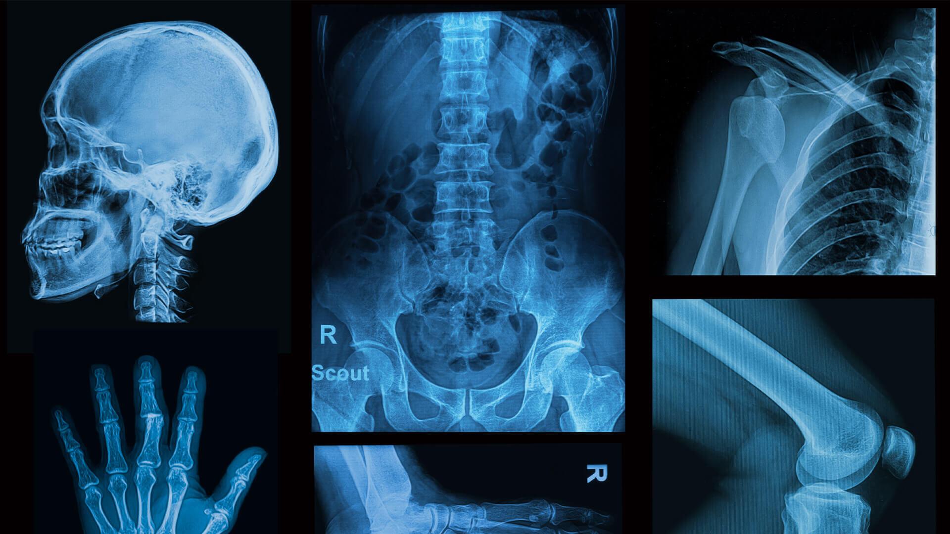 diversas imagens de raio x
