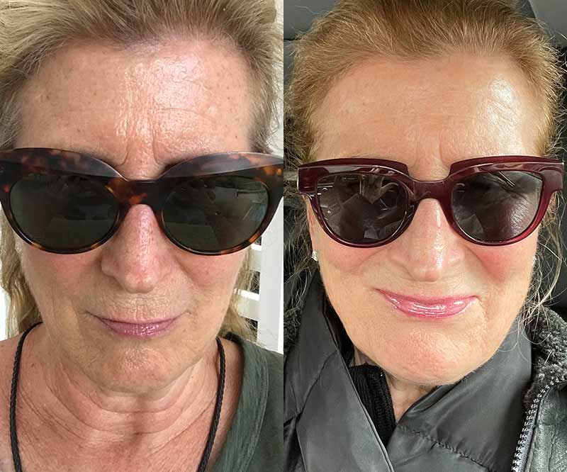red light therapy before after