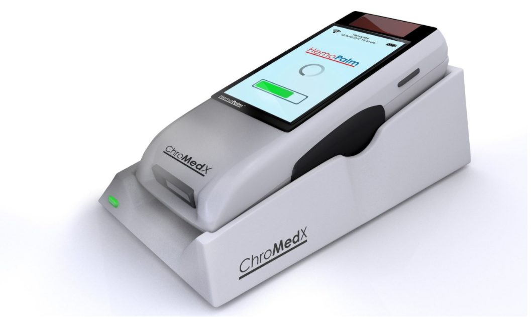 ChroMedX Announces In-House Biosensor Manufacturing for Expedited Testing and Refinement
