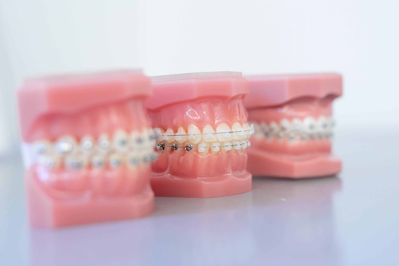 Carree Dental Kieferorthopädie Zahnspangen