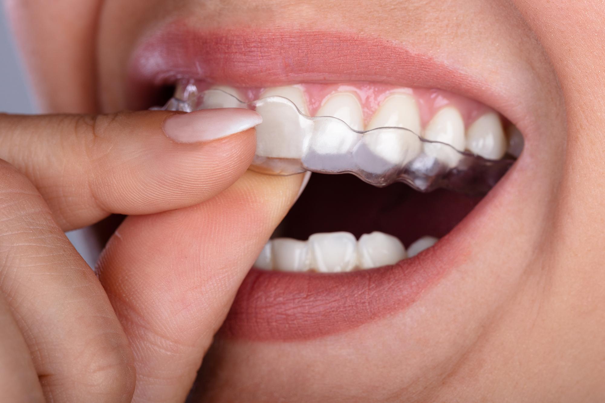 Carree Dental Kieferorthopädie unsichtbare Schienen
