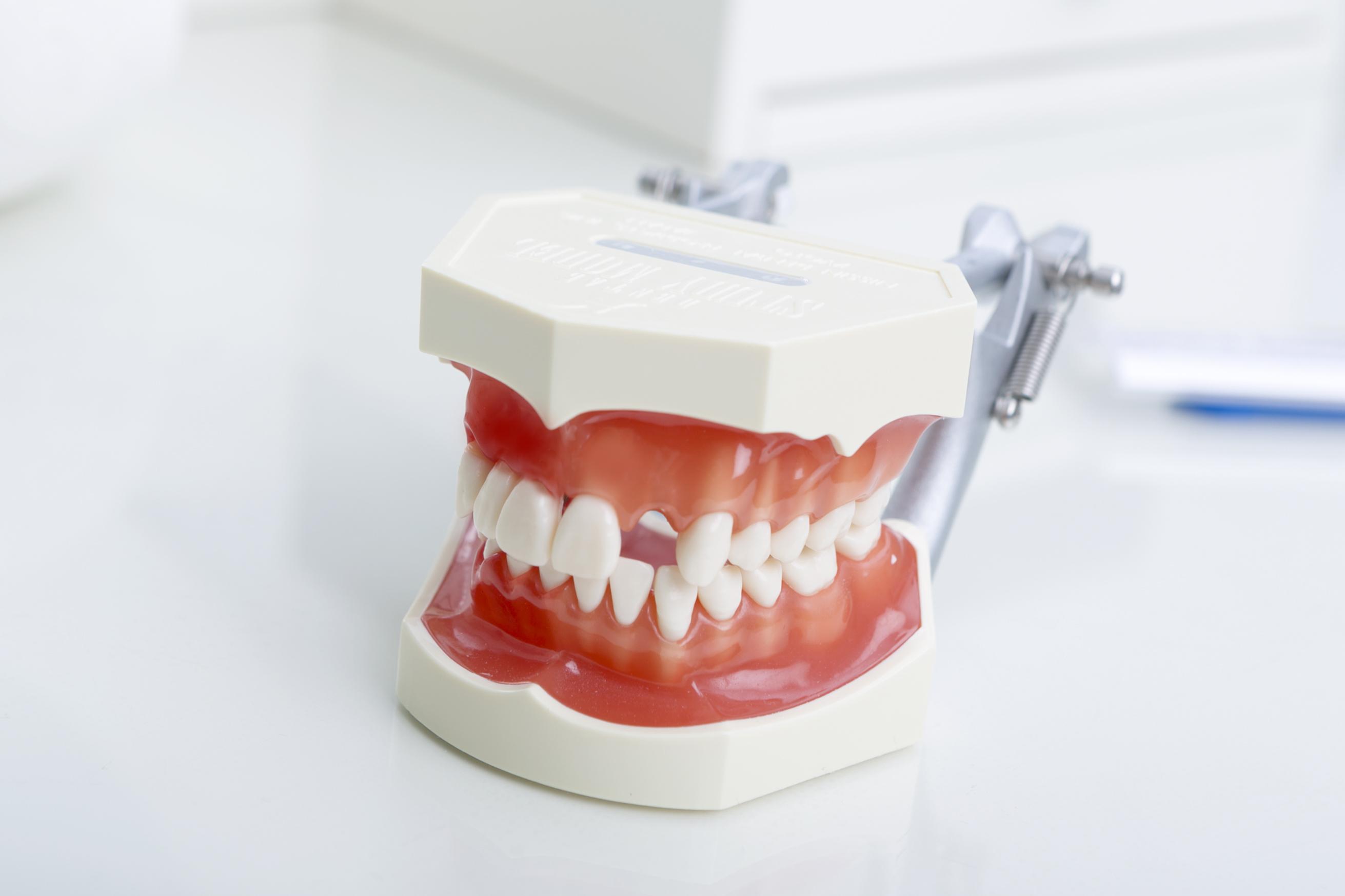 Implantologie Carree Dental MVZ Köln