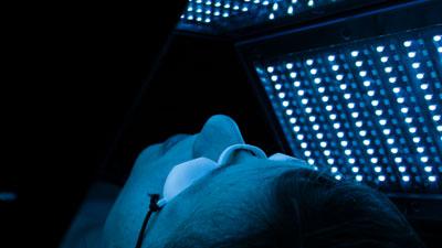 Une femme en pleine séance de photobiomodulation LED sur le visage et sous une lumière bleue.