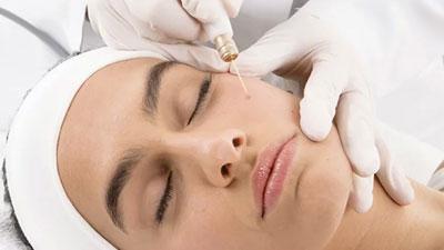 Une femme en pleine séance de microchirurgie plasma. Une aiguille passe au dessus du visage sans contact avec la peau.