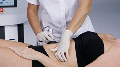 Une femme en train de se faire traiter le ventre avec de la cavitation.
