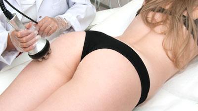 Une femme est allongée sur le ventre en pleine séance de radiofréquence. La pièce à main passe sur le bas de la fesse gauche.