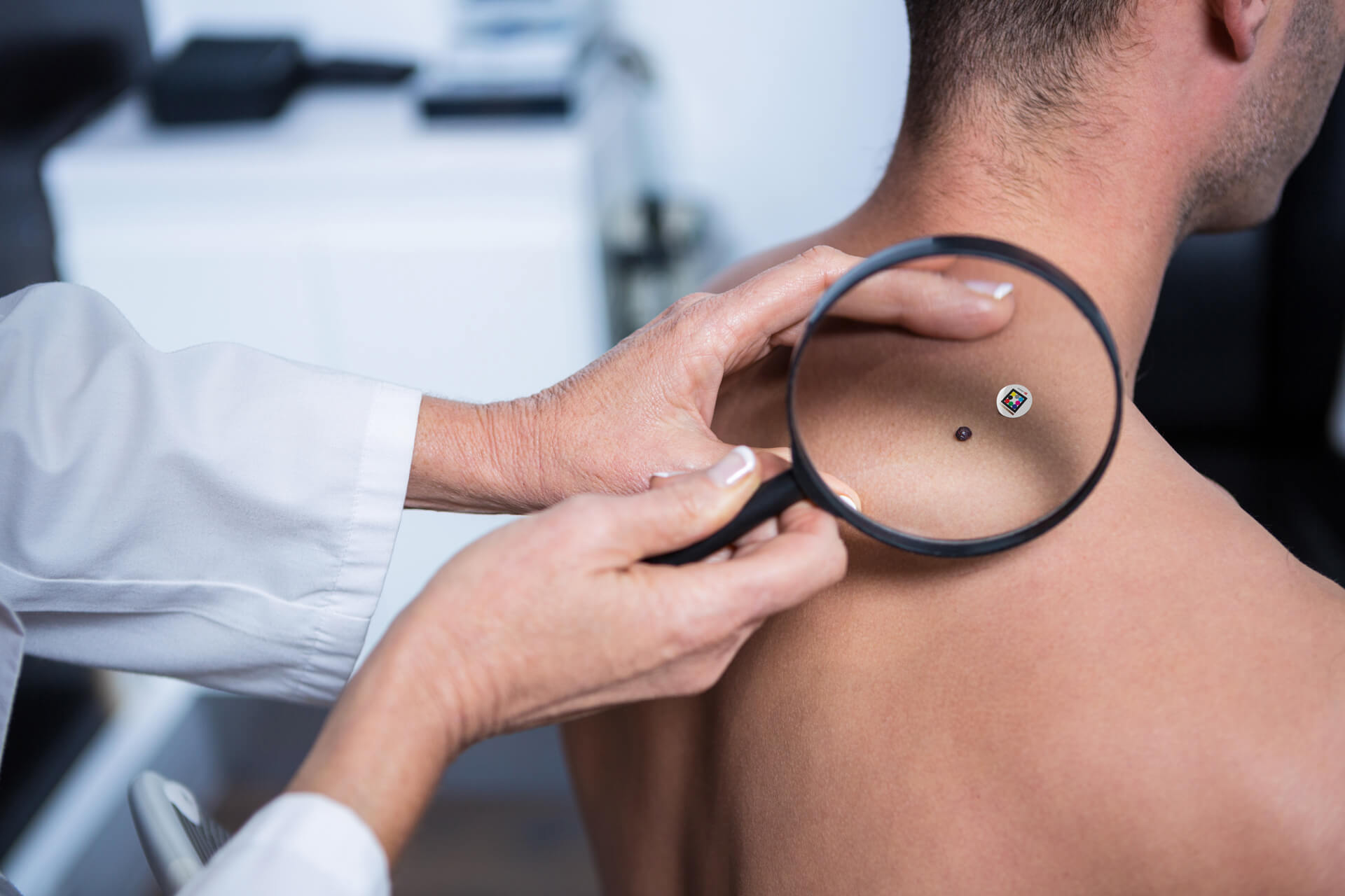 Dotcot assess mole with Scarletred Skin patch on the back of male patient