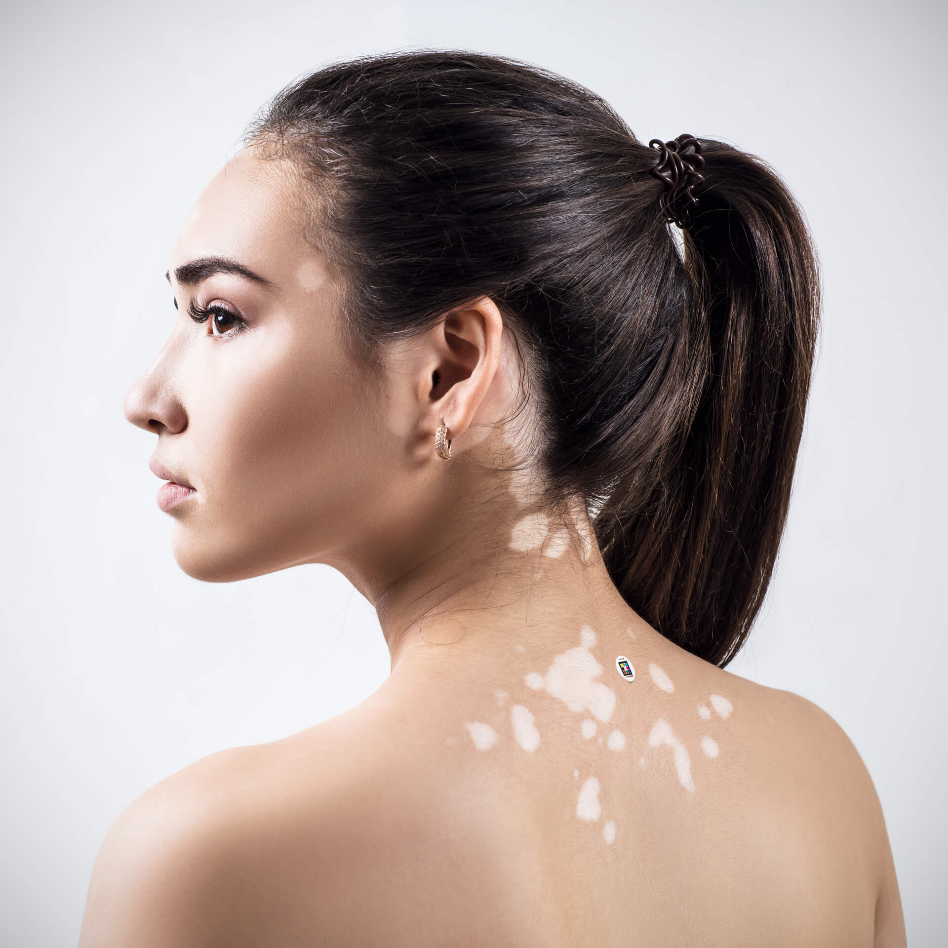 Young woman with vitiligo and Scarletred Skin patch