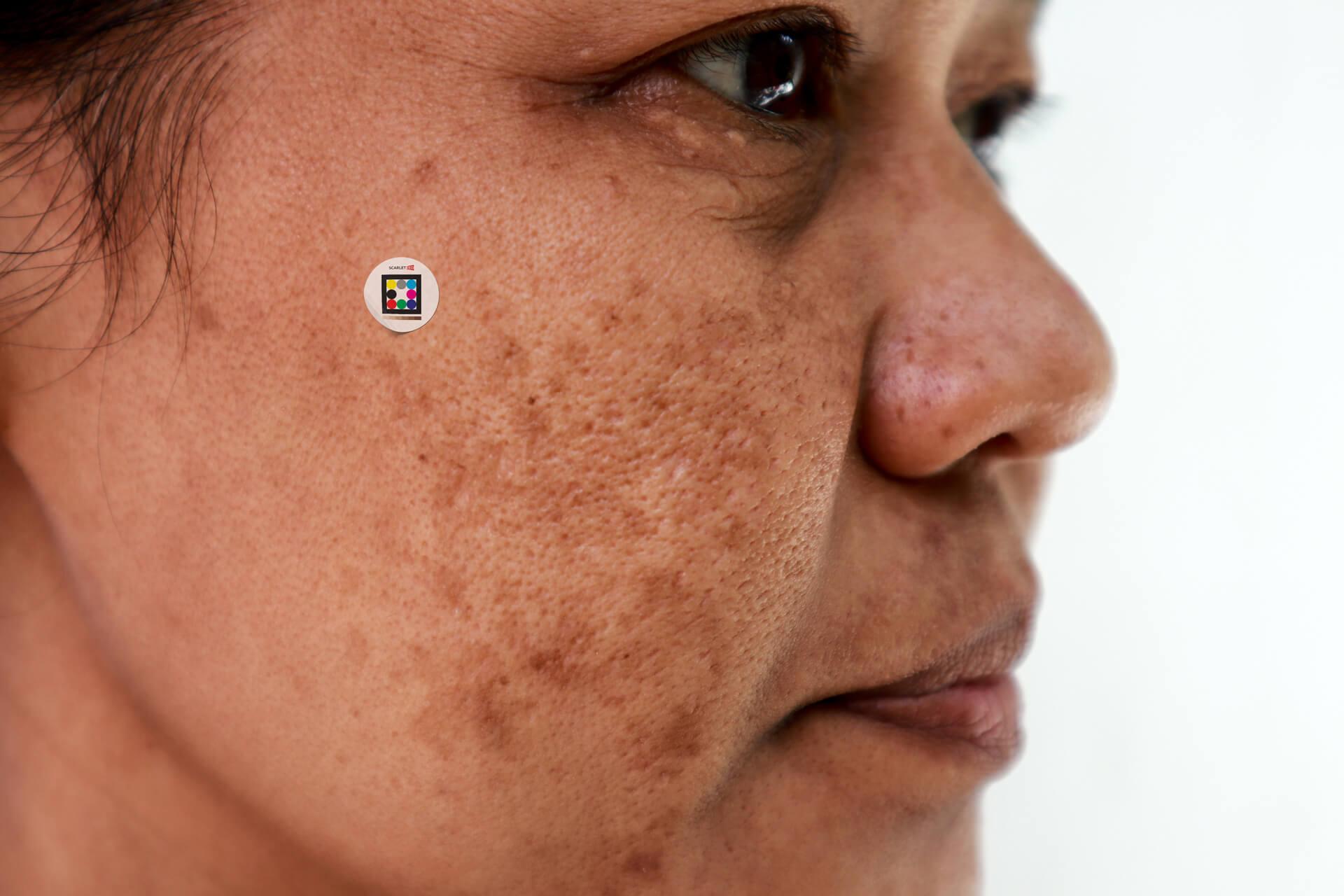 Solar lentigo on famel patient´s cheeks with Scarletred Skinpatch