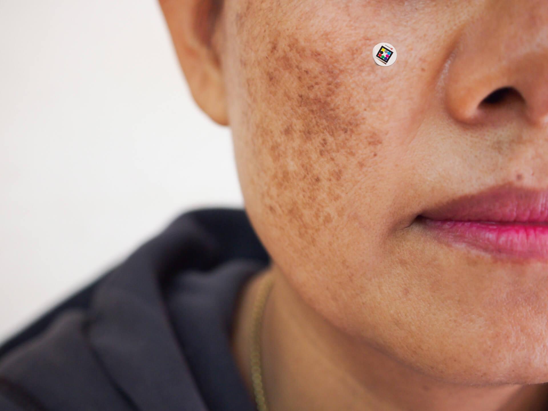 Solar lentigo on famel patient´s cheeks with Scarltered Skinpatch
