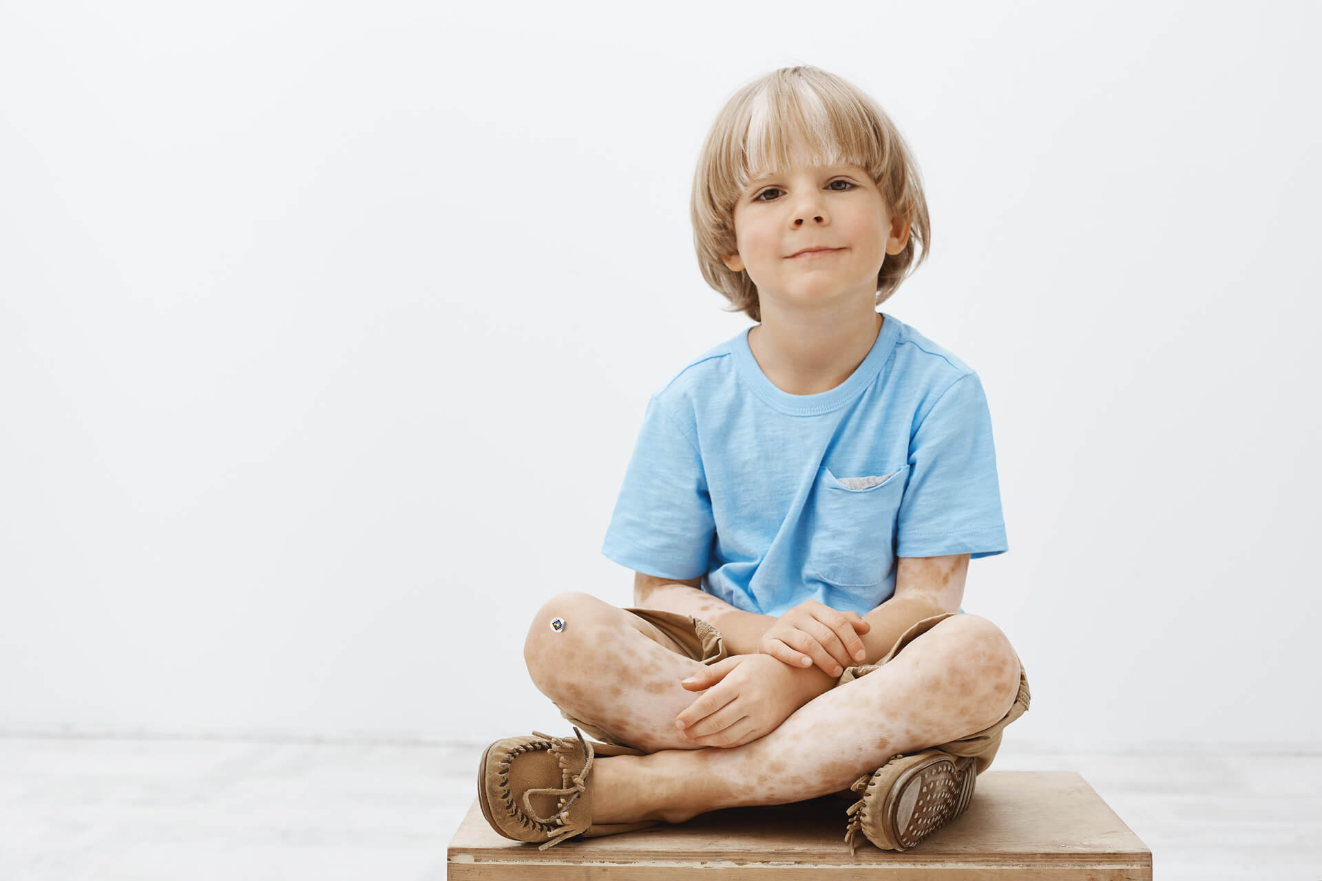 Child with vitiligo with Scarletred skin patch