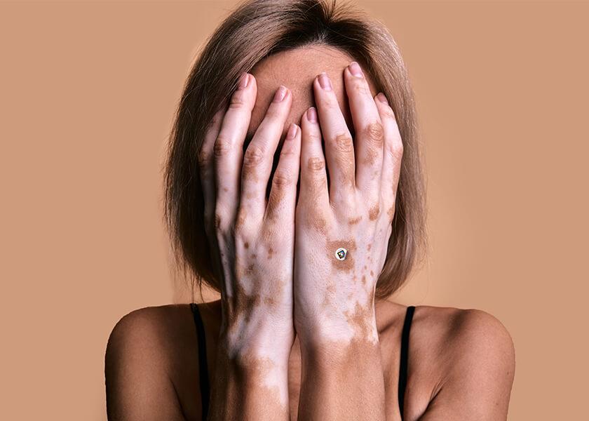 Vitiligo - Revolutionizing dermatology by standardized assessment