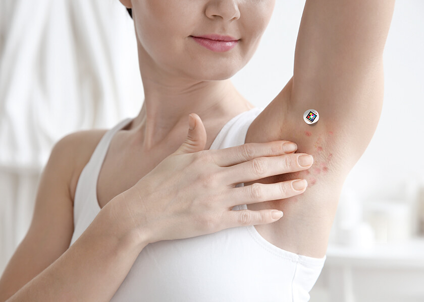 Woman touching her armpit with hidradentitis suppurativa and Scarletred skinpatch next to it