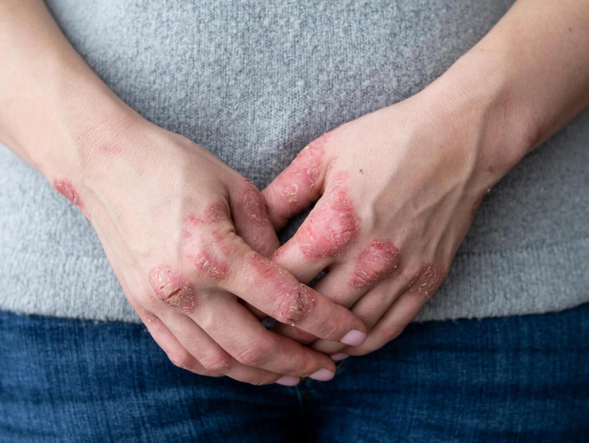 Psoriasis on female patient´s hands