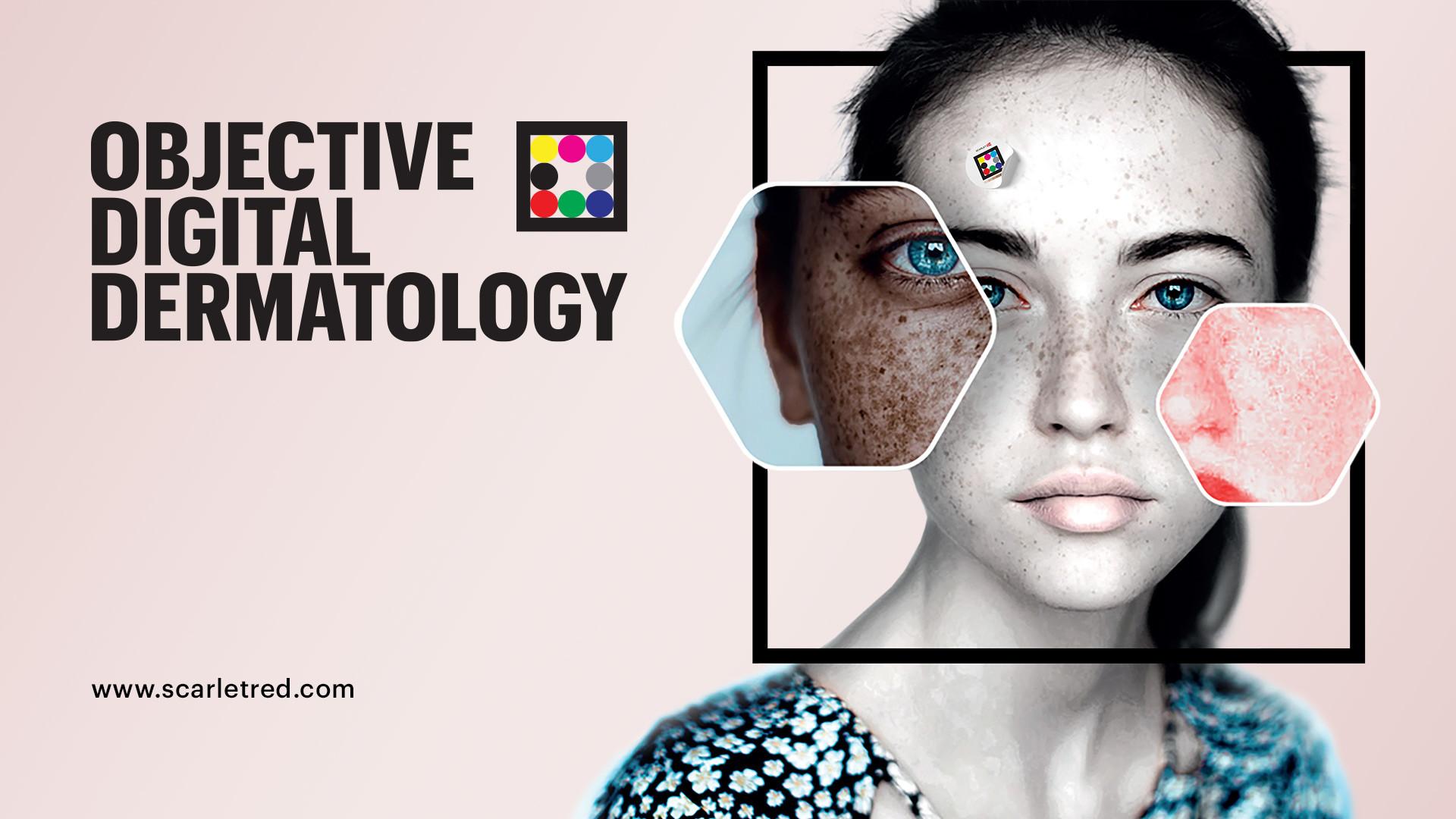 Objective digital dermatology by Scarletred