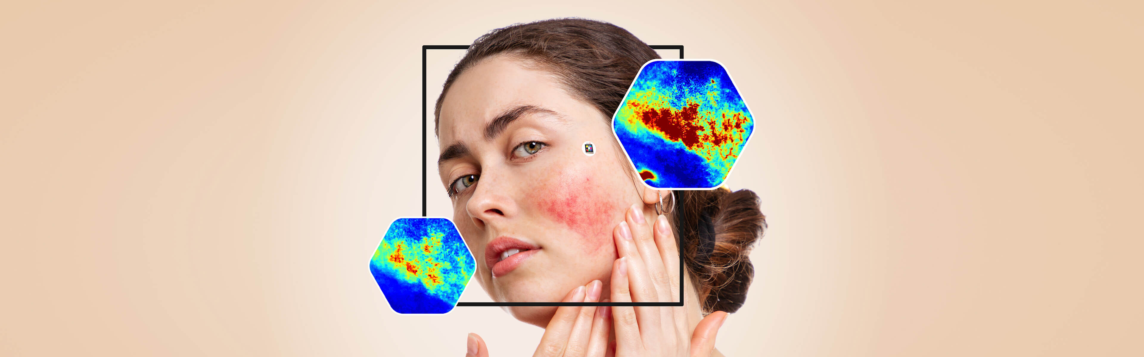 Woman with rosacea with Scarletred skin patch next to it