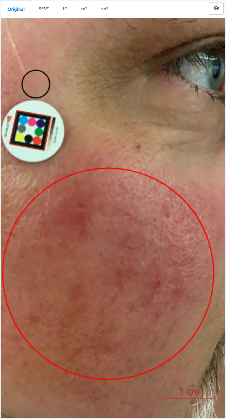 Image assessent with ScarletredVision on a rosaea patient after treatment