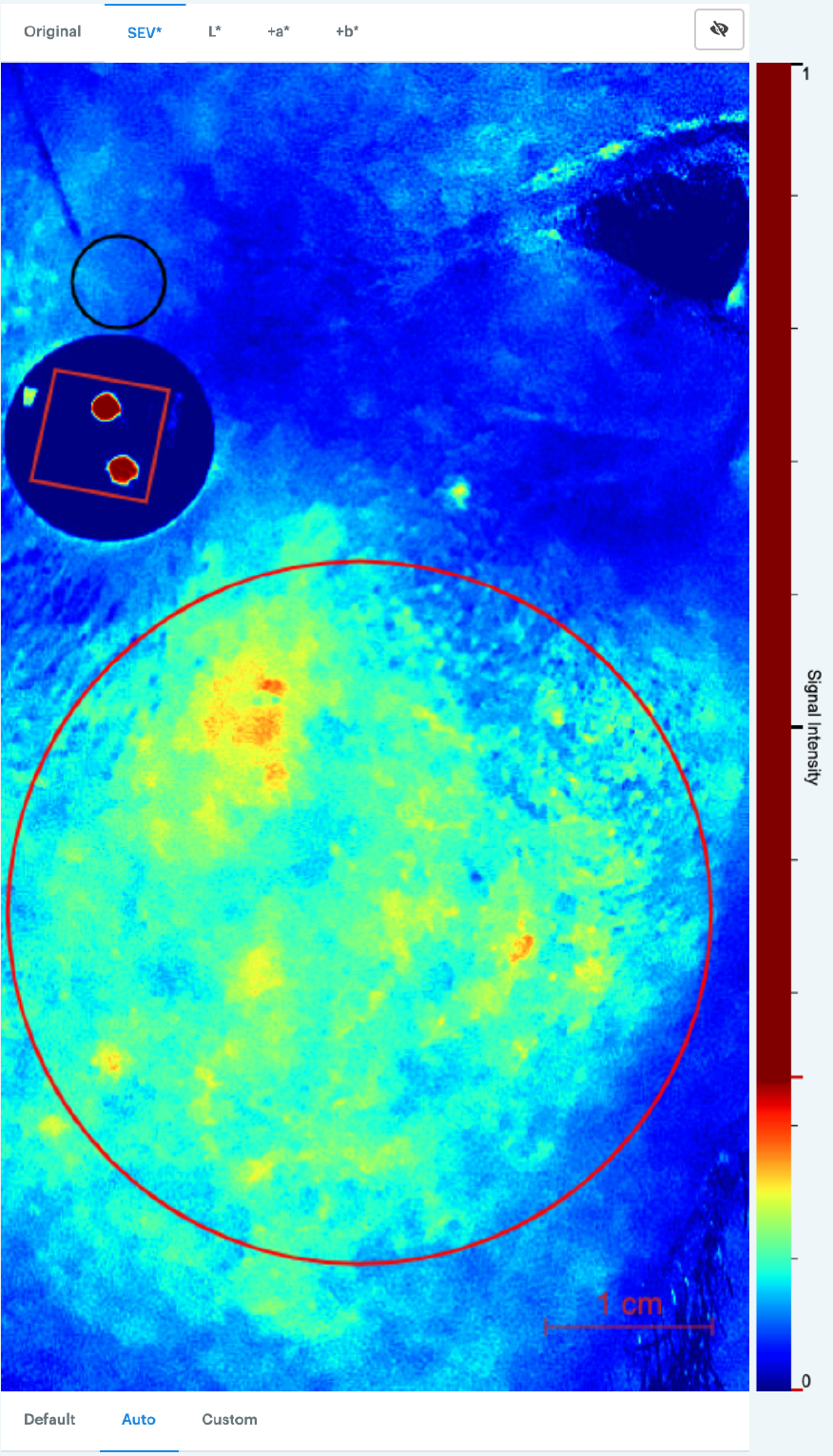 SEV Signal intensity map on ScarletredVision platform for rosacea patient before treatment