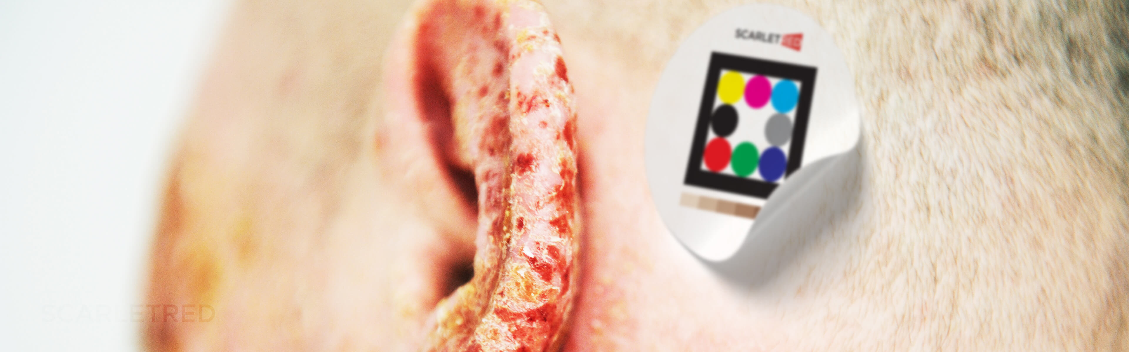 atopic dermatitis on the ear with Scarletred skin patch