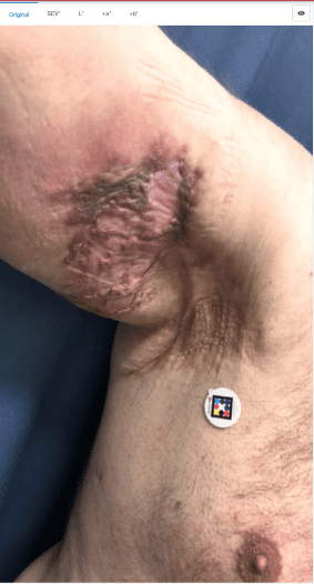 Original image of the hidradenitis suppurativa lesion with ScarletredVision skin patch.