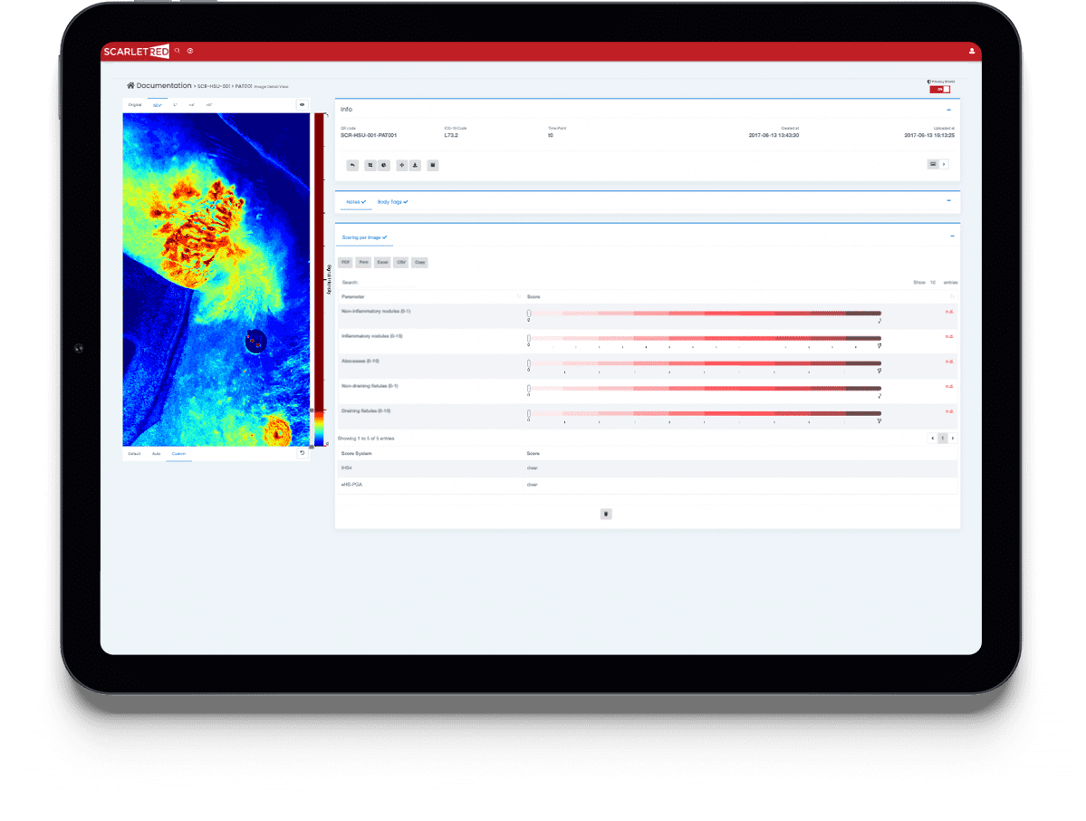Summary of documentation and analysis of a hidradenitis suppurativa patient on the ScarletredVision nline platform