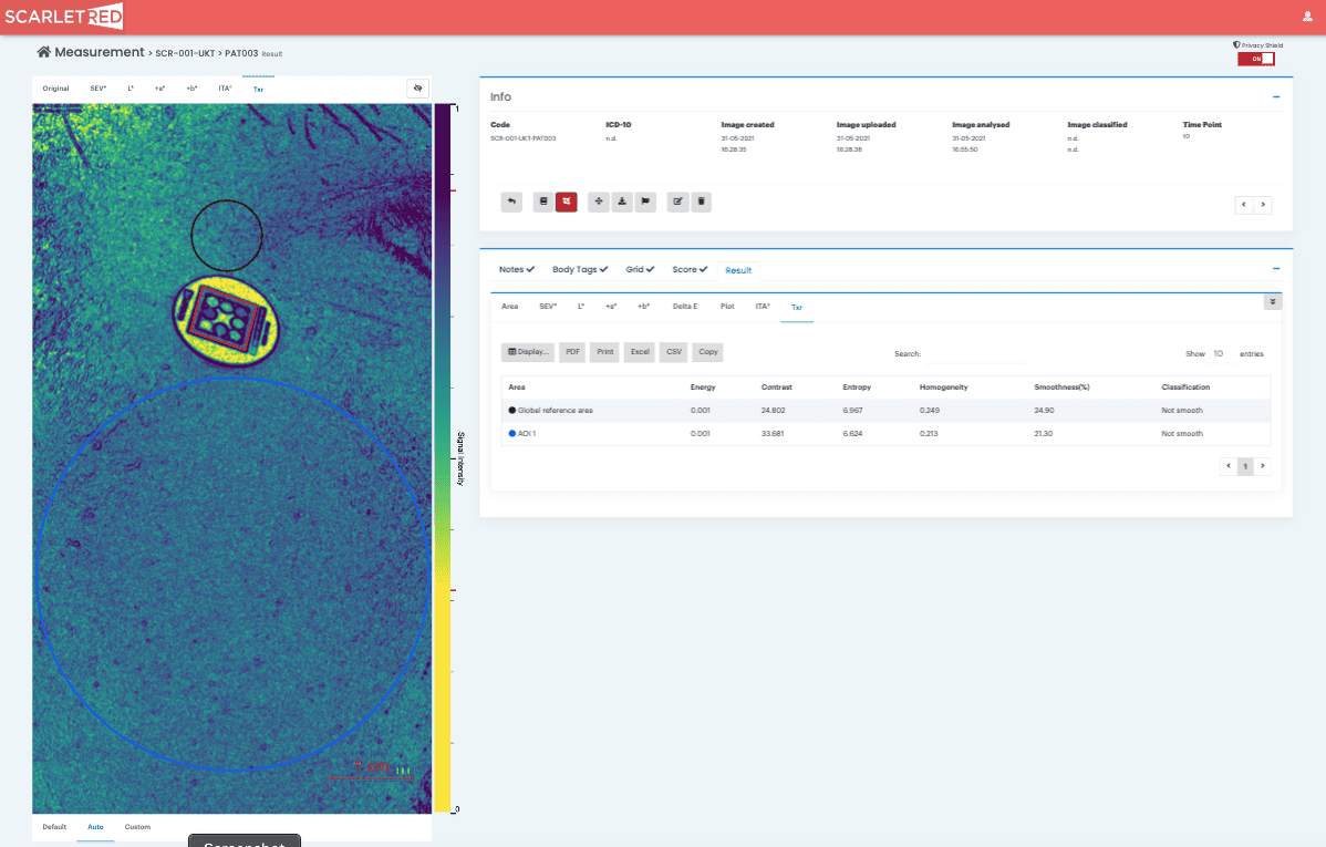 Analysis of skin texture of Rosacea patient before treatment on the ScarletredVision Online Platform