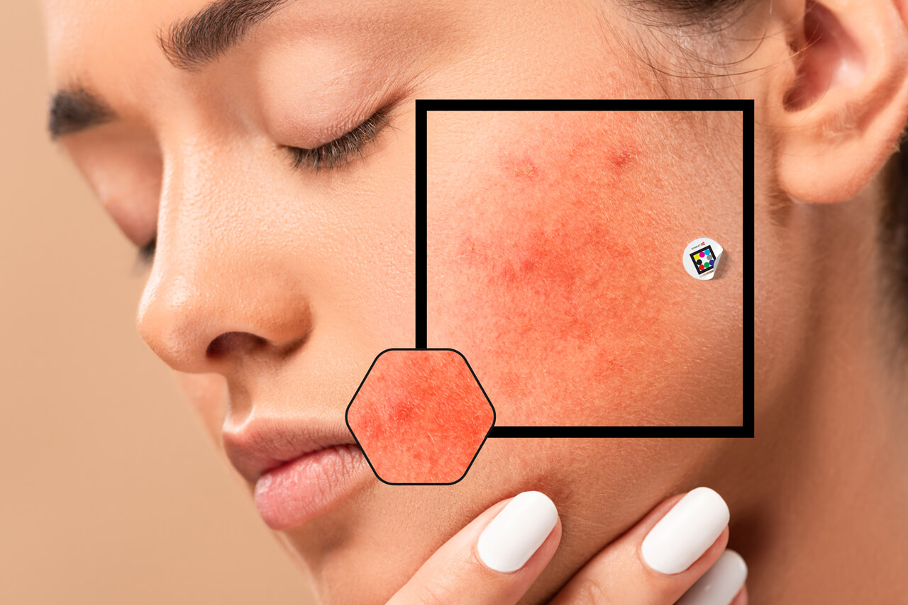 Analysing skin texture on woman´s red cheek with Scarletred Vision