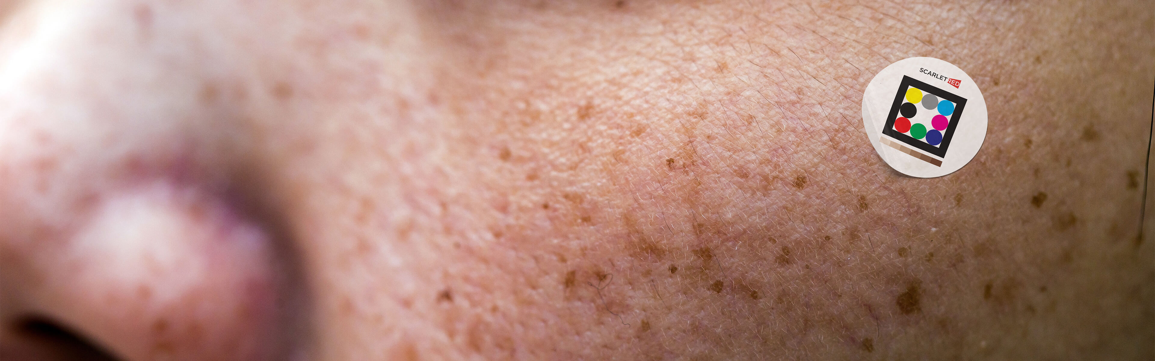 Documenting age spots on woman´s cheek with the help of the Scarletred skinpatch