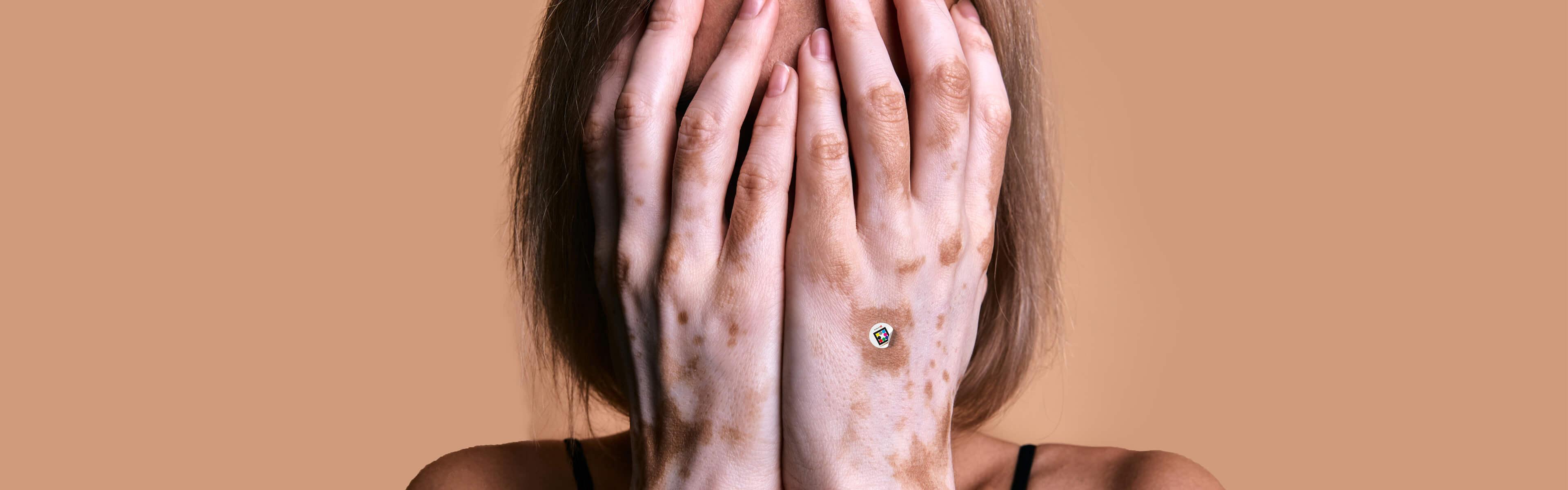 Objective assessment and color quantification of vitiligo