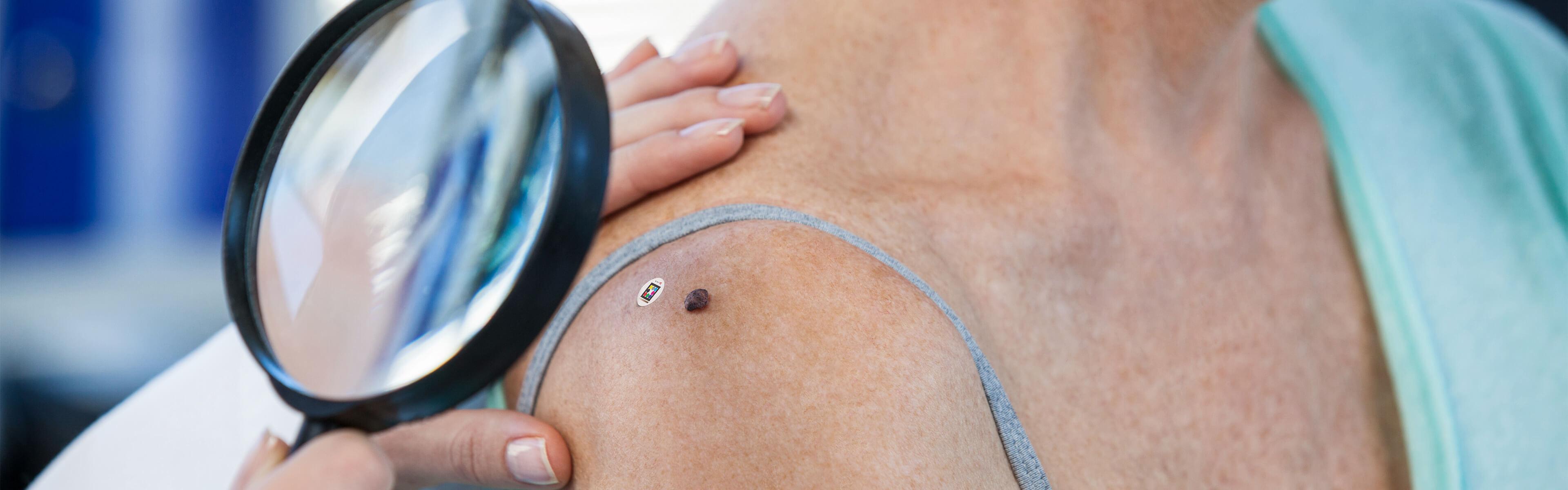 Digital standardized documentation and assessment of non-melanoma related skin changes