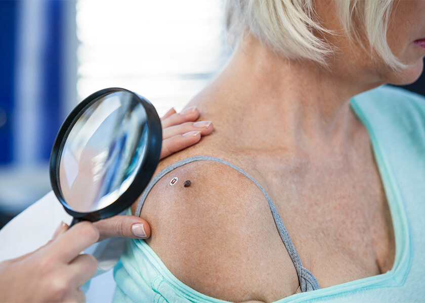 Female patient getting moles checked with magnifying glass