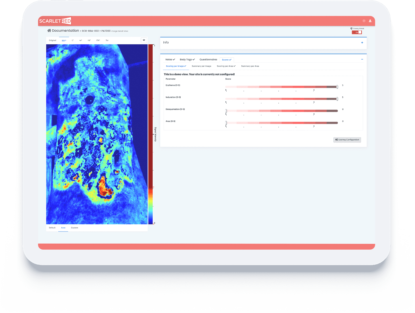 Documentation overview of an epidermolysis bullosa wound on the ScarletredVision online platform