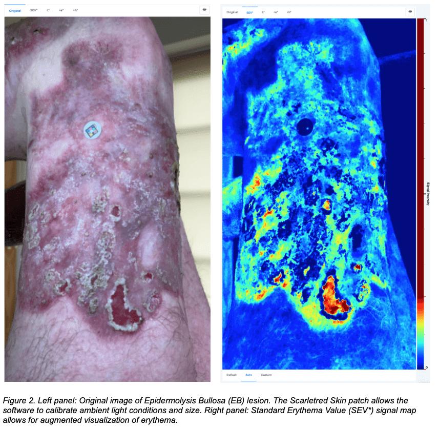 Epidermolysis bullosa wound original and SEV image on the ScarletredVision platform