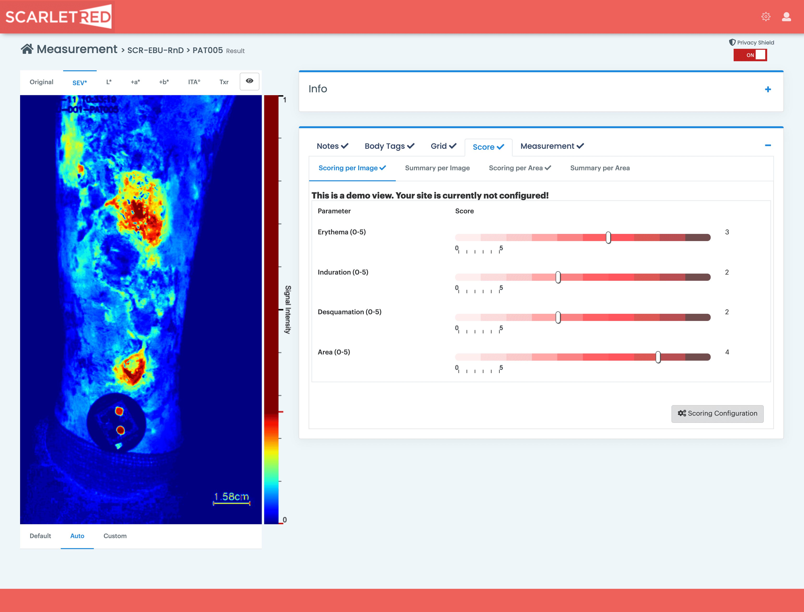 Epidermolysis bullosa SEV image  and scoring on ScarletredVision platform