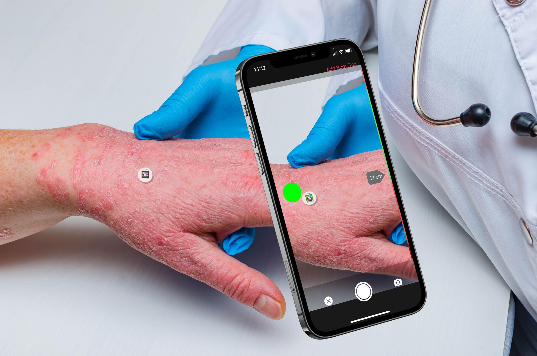 Scarletred Artikel in der Tageszeitschrift Der Standard über Strahlendermatitis, eHealth und Telemedizin