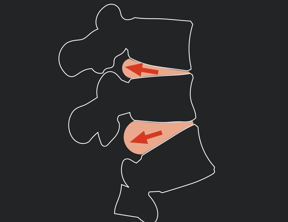 Flexed disc spine