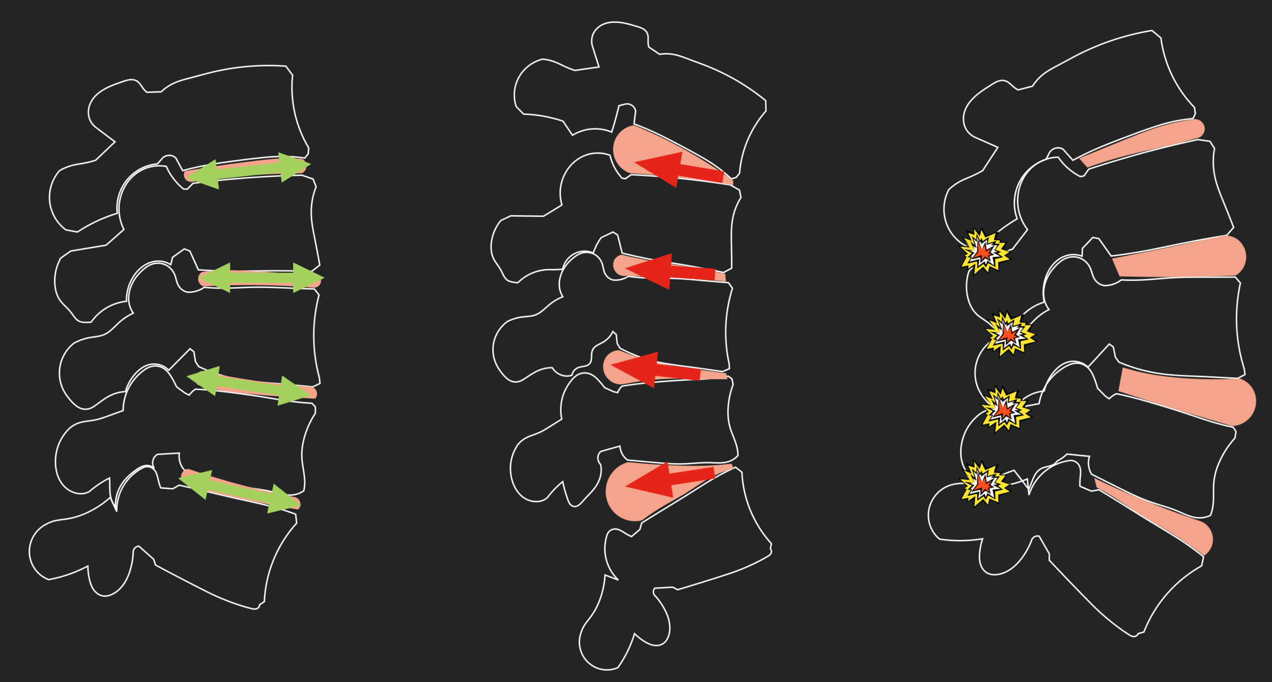 Biomechanics of the Spine - How Posture Influences our Structures