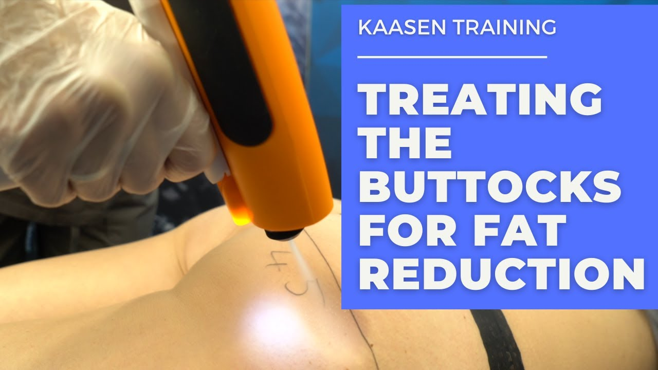 Kaasen Training - Treating the Buttocks for Fat Reduction