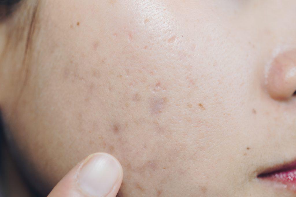 Melasma vs. Hyperpigmentation