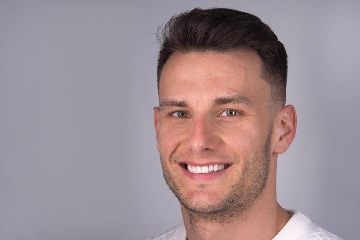 Zmena úsmevu - Filip