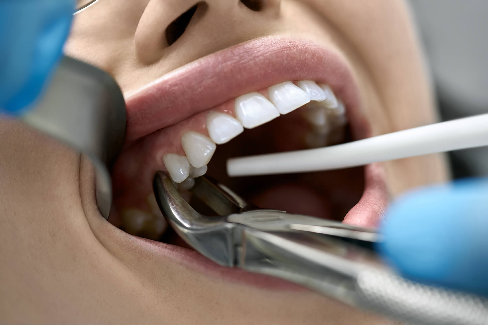 How Can I Fixed a Chipped Tooth?