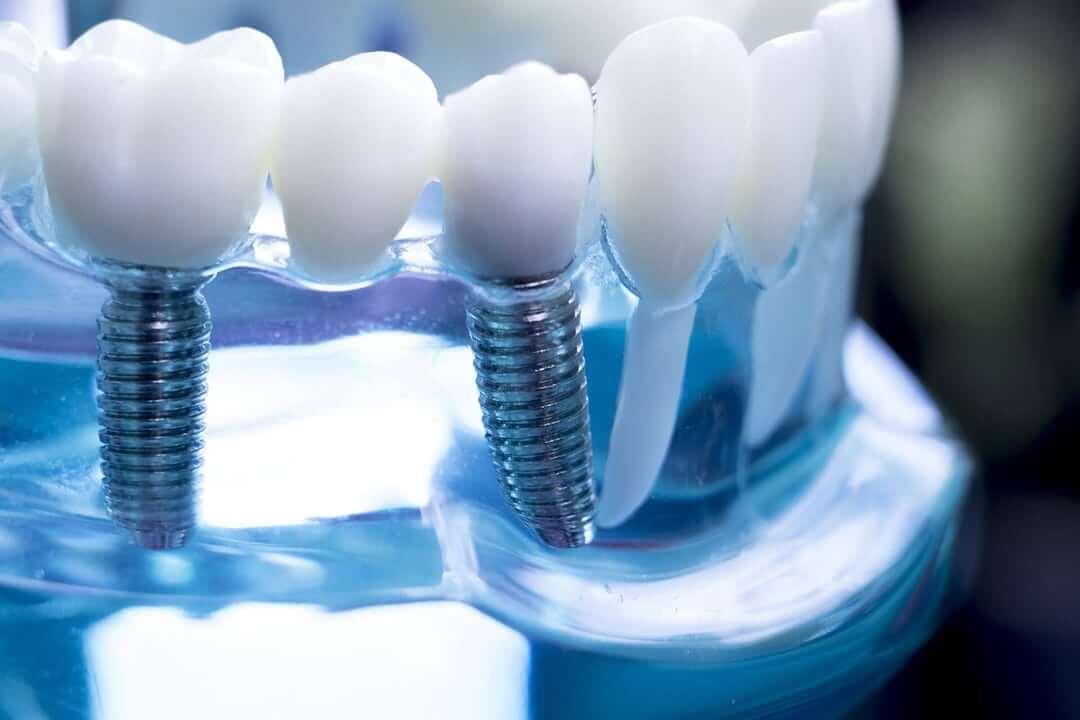 Dental Implants Meridian ID
