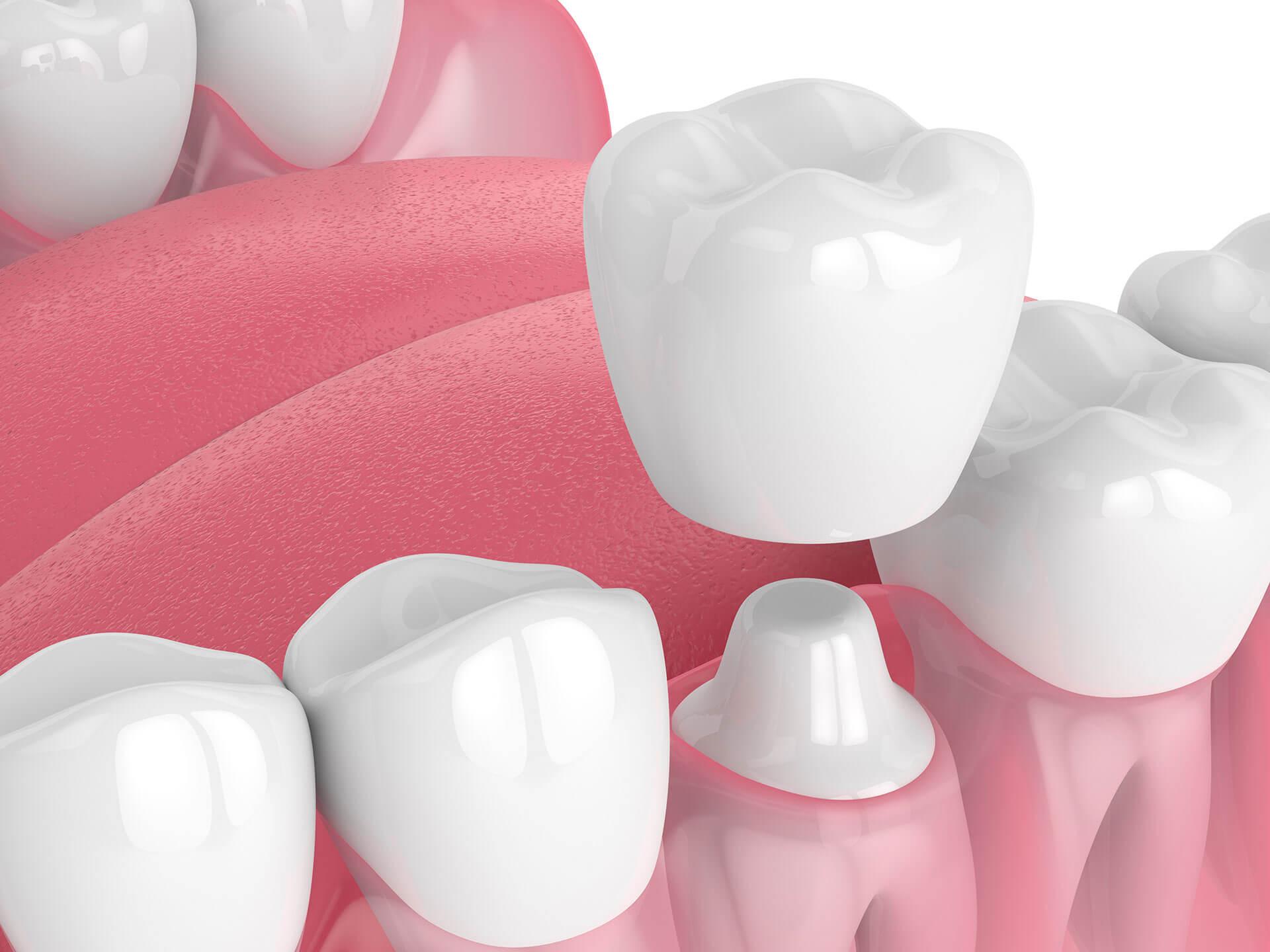 Best Dental Crown Meridian ID