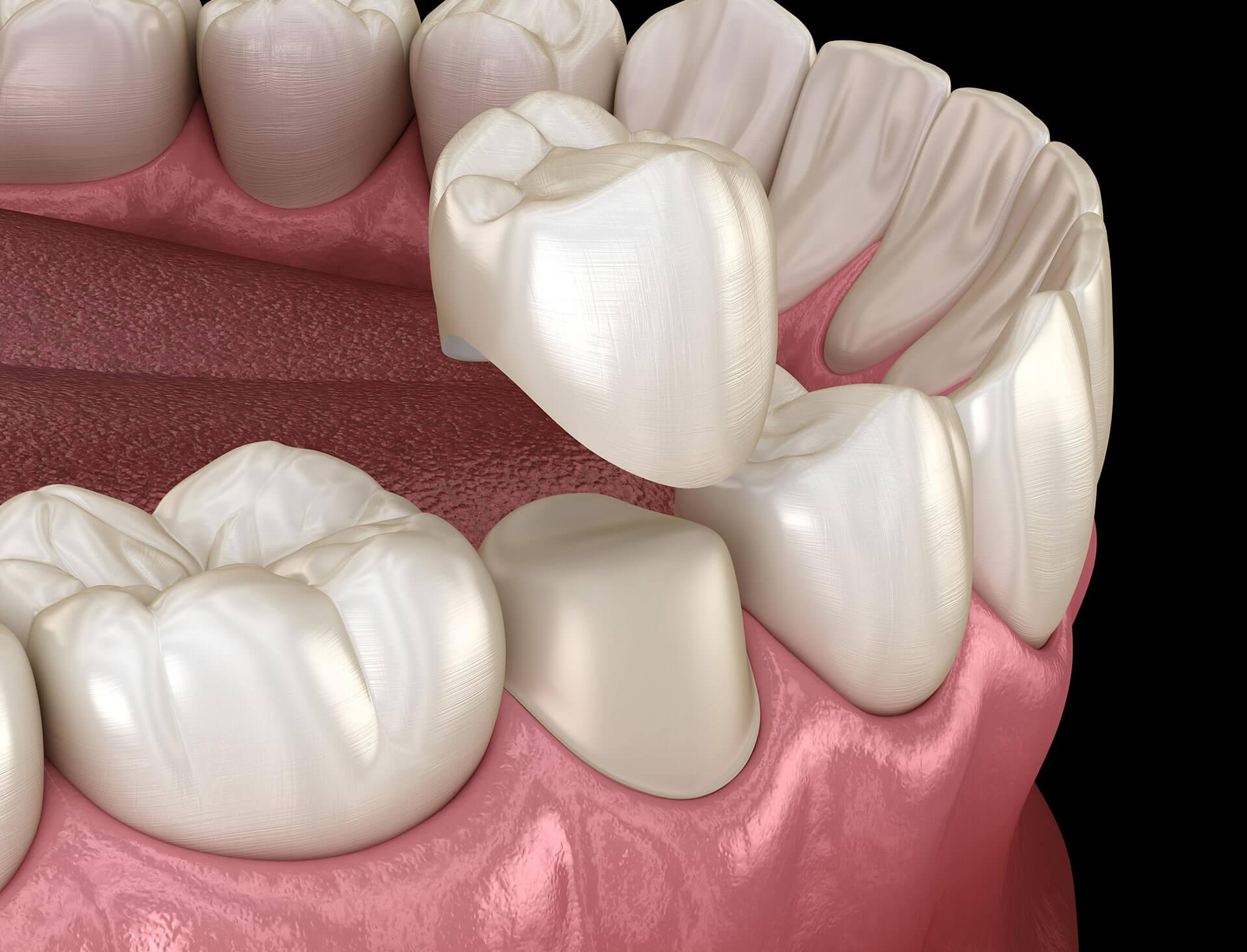 Dental Crown Meridian ID