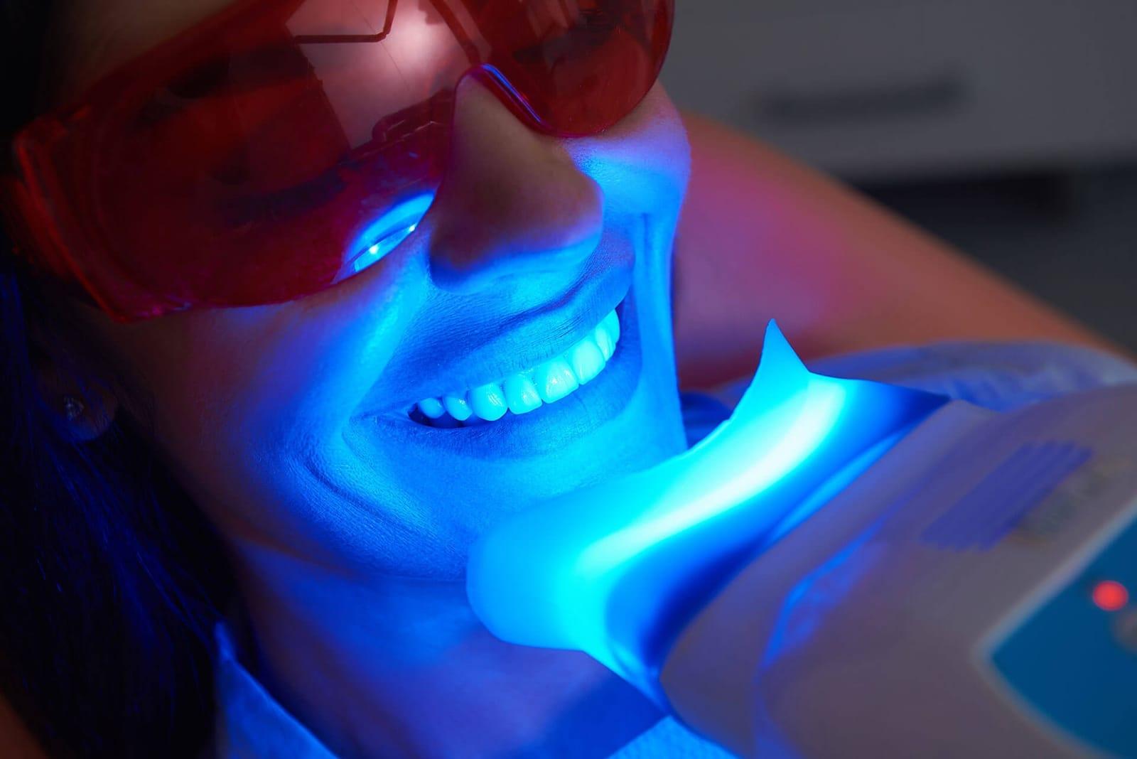 Teeth Whitening Meridian ID