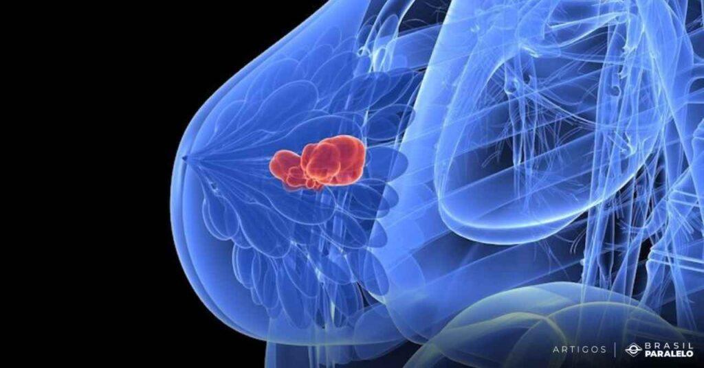 O-aborto-e-uma-das-principais-causas-de-cancer-de-mama