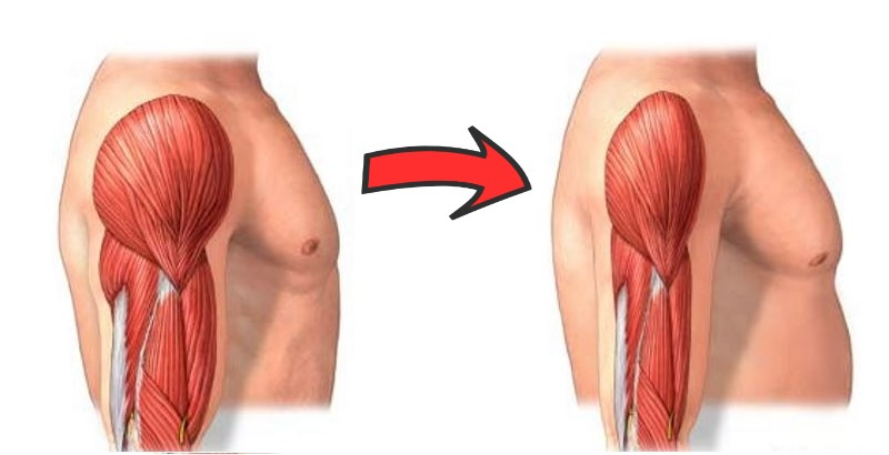 How Quickly Do You Lose Muscle?