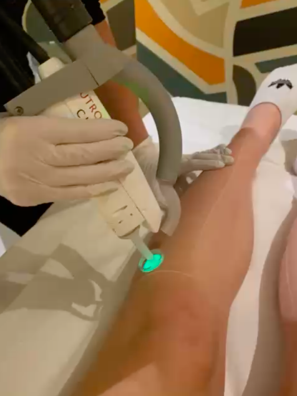 LASER HAIR REMOVAL YOUNG LDN